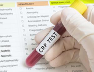 proteina C reattiva (PCR)