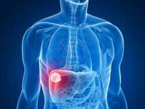 Cause delle transaminasi alte l'epatite nelle diverse forme