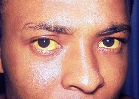 Uno dei sintomi delle transaminasi alte: l'ittero con colorazione gialla degli occhi.
