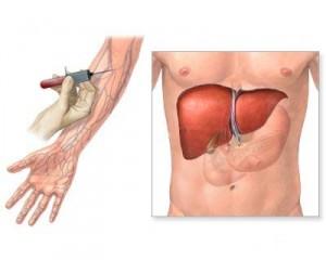 le transaminasi gpt si controllano con le analisi del sangue