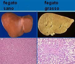 fegato grasso sintomi e cause non alcoliche