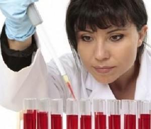 esami del sangue alt