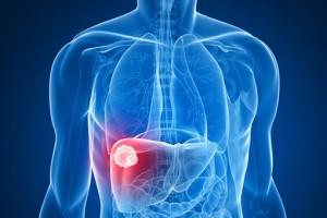 cellule epatiche del fegato o le cellule dei muscoli danneggiate